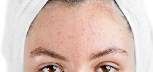 """6 Basic ways to deal with """"acne caused by stress"""""""